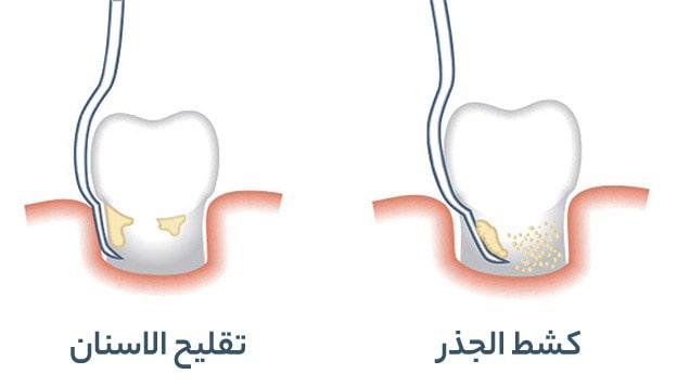 شرح تقليح الاسنان وكشط الجذر
