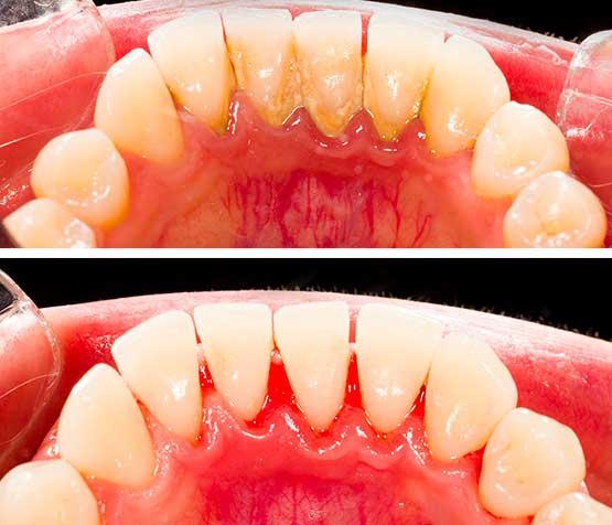 تقليح الاسنان وكشط الجذر في ايران