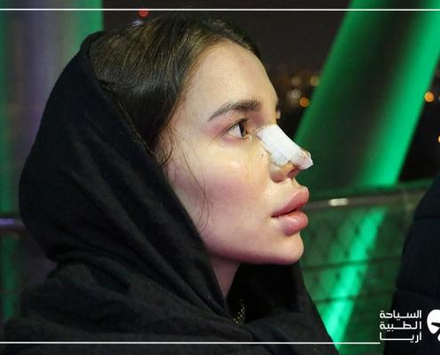 بعد عملية تجميل الانف في ايران لمريضة روسية