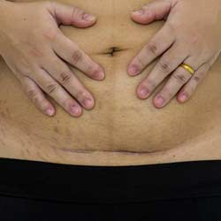 تقليل ندبات عملية انقاص الوزن