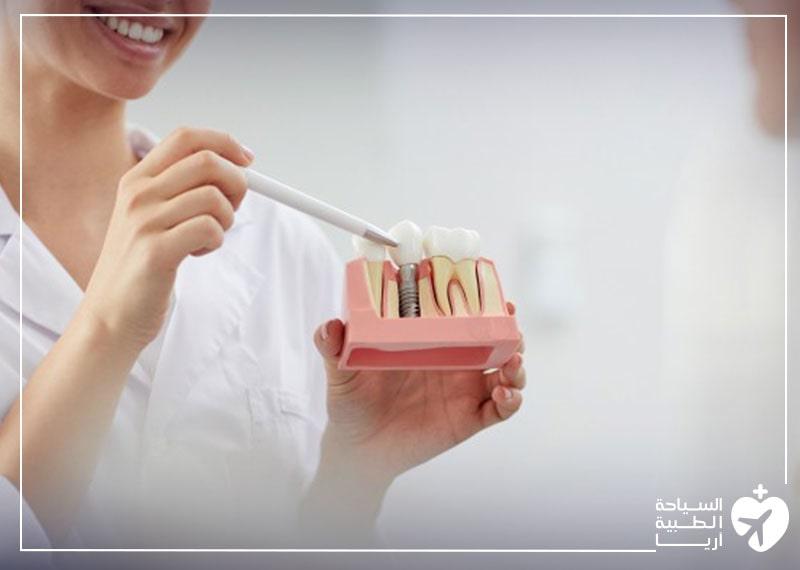 زرعات الأسنان هي الطريقة الأفضل لاستبدال الأسنان المفقودة بشكل دائم عبر عملية جراحية.