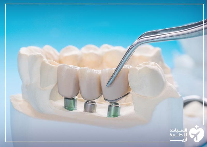 مارس عادات صحية فموية جيدة بعد زراعة الأسنان.