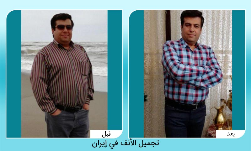 الدكتور مهدي ياميني متخصص في أمراض الجهاز الهضمي والكبد