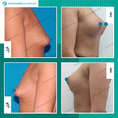 صور قبل وبعد تجميل الثدي