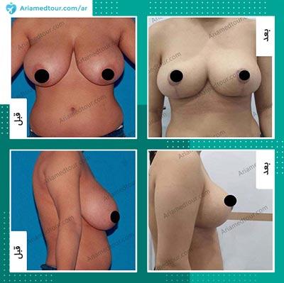 صور قبل وبعد تجميل الثدي في ايران