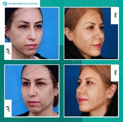 صورة قبل وبعد جراحة تجميل الذقن في ايران