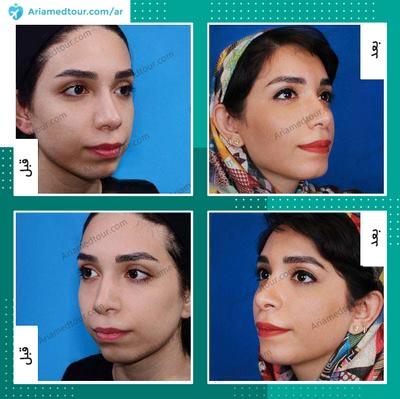 قبل وبعد جراحة تجميل الذقن في ايران