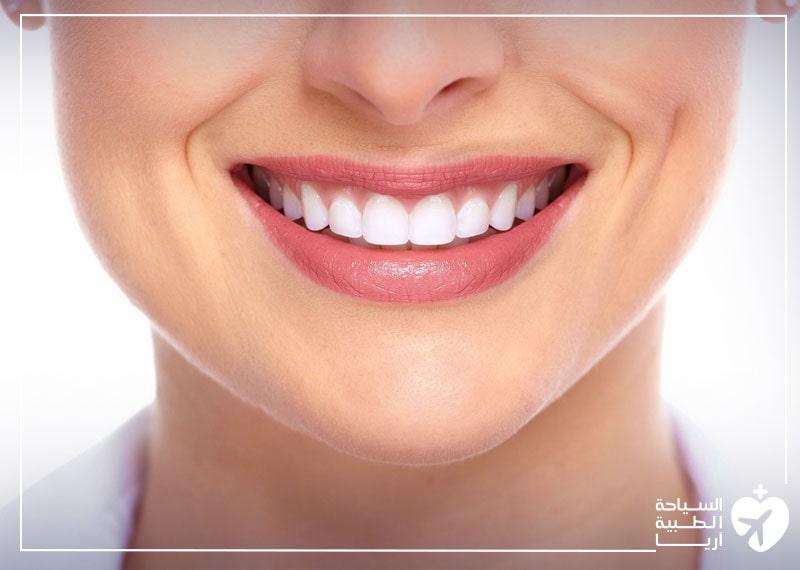 أسنان المرأة بعد فينير الأسنان