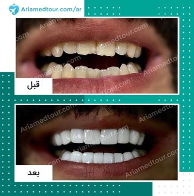 قبل وبعد علاج و تجميل الاسنان