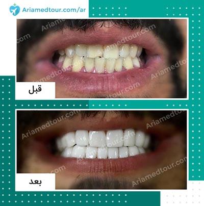 قبل وبعد تجميل الاسنان في ايران