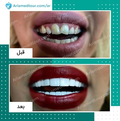 قبل وبعد علاج و تجميل الاسنان في ايران