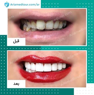 قبل وبعد تجميل الاسنان