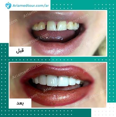 صورة قبل وبعد تجميل الاسنان في ايران