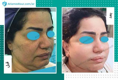 قبل وبعد جراحة شد الوجه في ايران