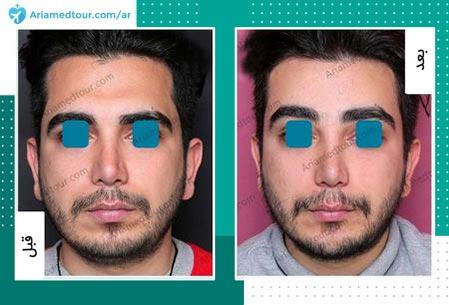 قبل وبعد إصلاح خط شعر الجبين في ايران