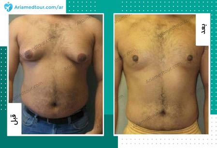 صورة قبل وبعد جراحة تثدي الرجال في ايران