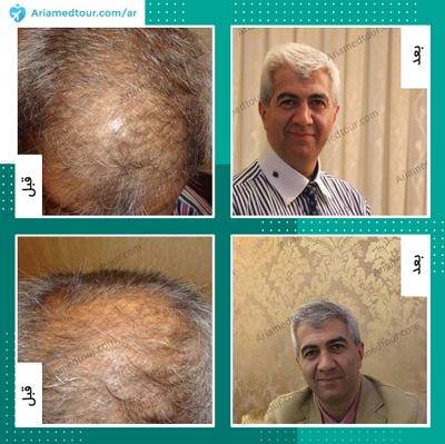 قبل وبعد زراعة الشعر