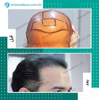 صورة قبل وبعد زراعة الشعر في ايران