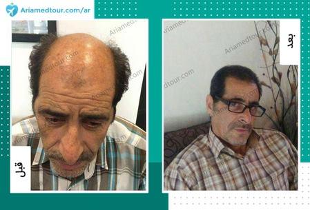 قبل وبعد زراعة الشعر في ايران