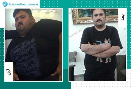 قبل و بعد تكميم المعدة في ايران