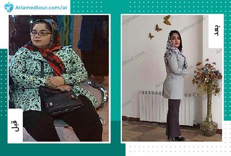 صورة قبل وبعد تكميم المعدة في ايران