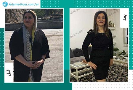 قبل و بعد عملية انقاص الوزن في ايران