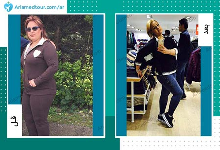 قبل و بعد جراحة انقاص الوزن في ايران