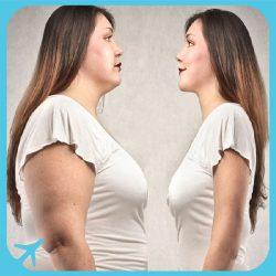 اسلیو معده- لیپوساکشن- کاهش وزن