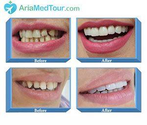 زیبایی دندانها قبل و بعد عمل
