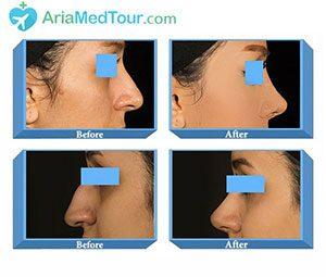 زیبایی صورت قبل و بعد از عمل