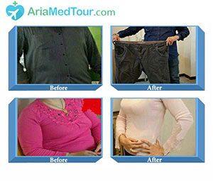 کاهش وزن قبل و بعد از عمل