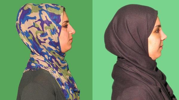 عکس قبل و بعد جراحی زیبایی بینی