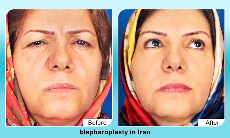 Eyelid surgery in iran before and after