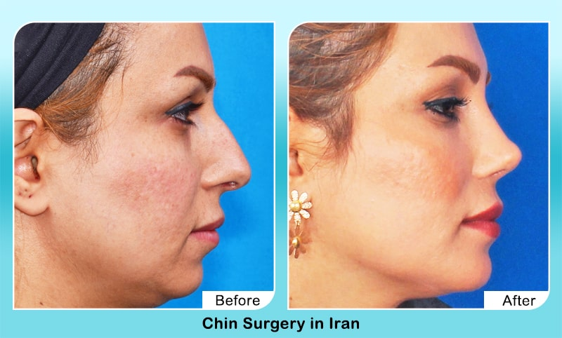 nose job before and after iran