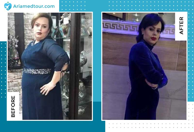 weight loss before after dr. shahriar azizi