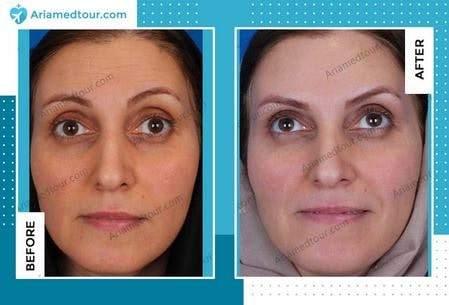 Botox injection before and after photo in Iran