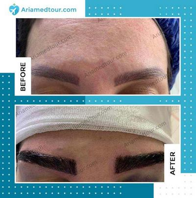 eyebrow transplant before after