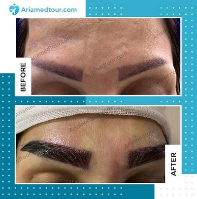 eyebrow transplant before after photo in Iran