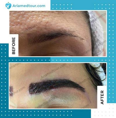 eyebrow transplantation in Iran before and after photo