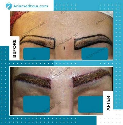 eyebrow transplant in Iran before and after photo