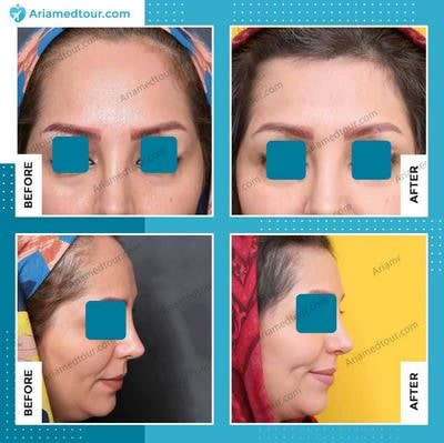 forehead contouring before and after photo