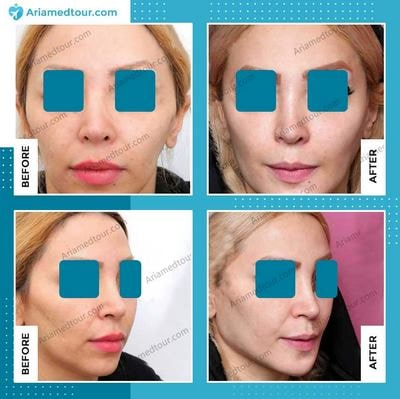 forehead contouring in Iran before and after photo