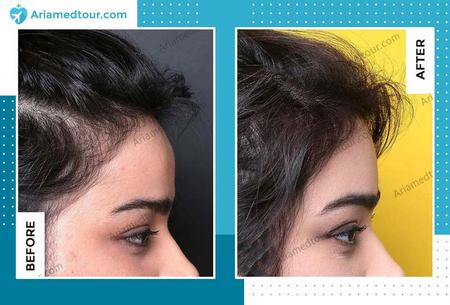 forehead contouring before and after photo in Iran