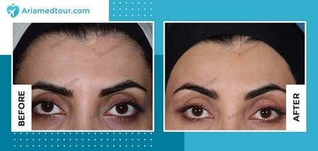 forehead contouring in Iran before after