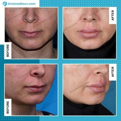 lip augmentation before and after photo in Iran