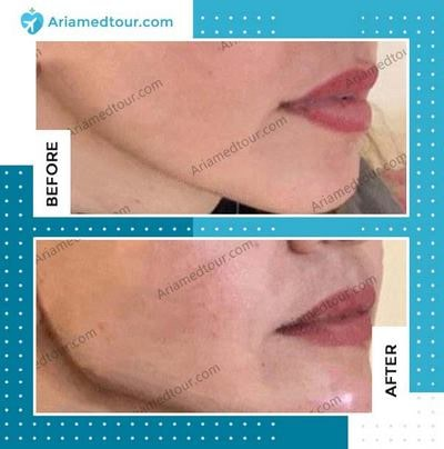 lip augmentation before after photo