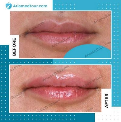 lip augmentation before and after photo