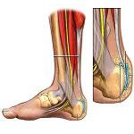 Achilles tendon repair anatomy