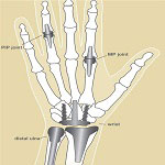 anatomy of hand in elbow wrist and hand joint replacement surgery