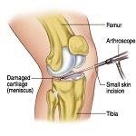 repaired knee after meniscus repair surgery in Iran